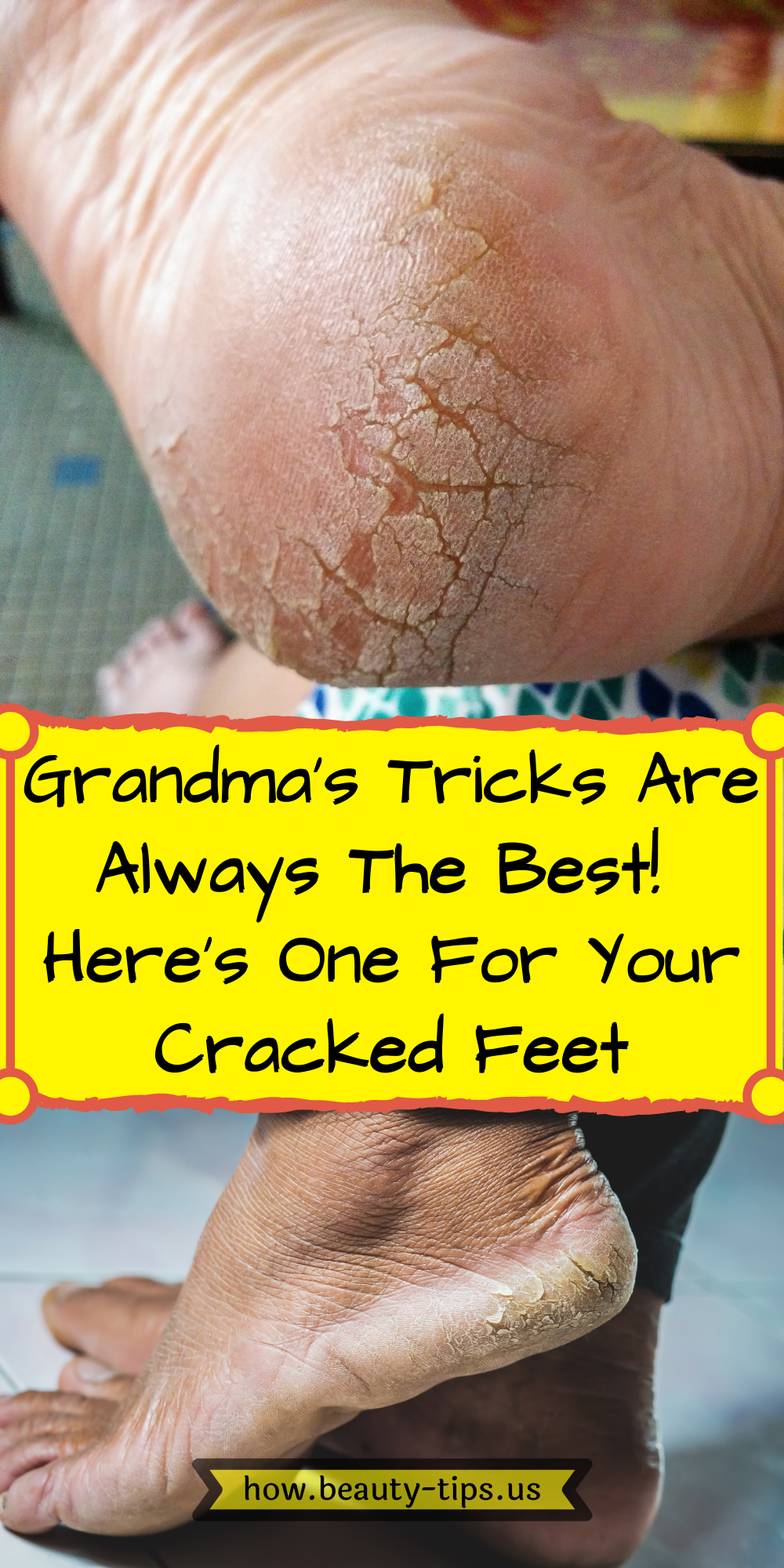 Grandma's Tricks Are Always The Best! Here's One For Your Cracked Feet